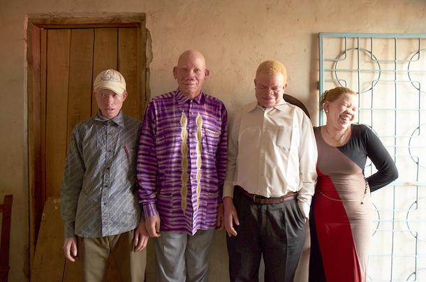 ムワンザのアルビノ協会