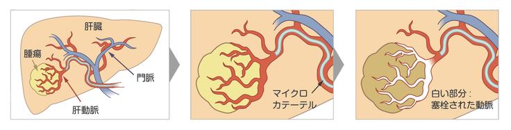 血管内治療イメージ