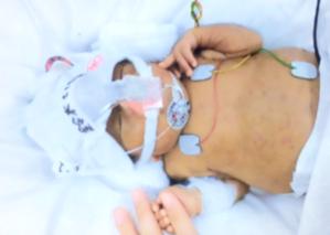 治療と戦う小さな体を守る。子どもが使えるボディーソープの開発