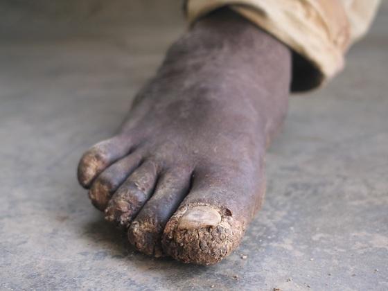 一生歩ける幸せを!ケニアの子どもにきれいな運動靴を届けたい!
