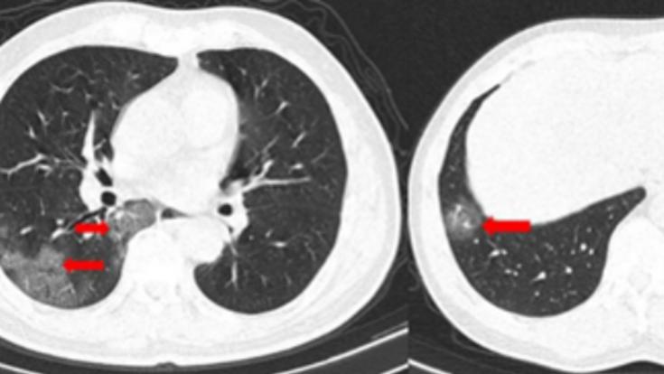 新型コロナウィルスによる肺炎を早期発見する為の低線量CT導入