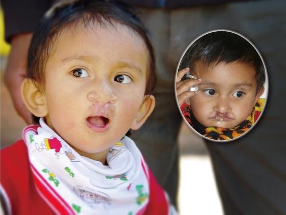ネパールの子どもたちを笑顔に!差別と障害で苦しむ患者さんのために医療チームを派遣!