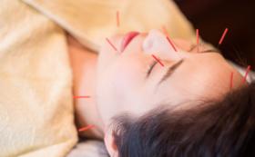 女性鍼灸師ファイナリストによる美容鍼